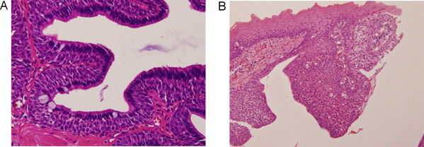 intraductal papilloma dna