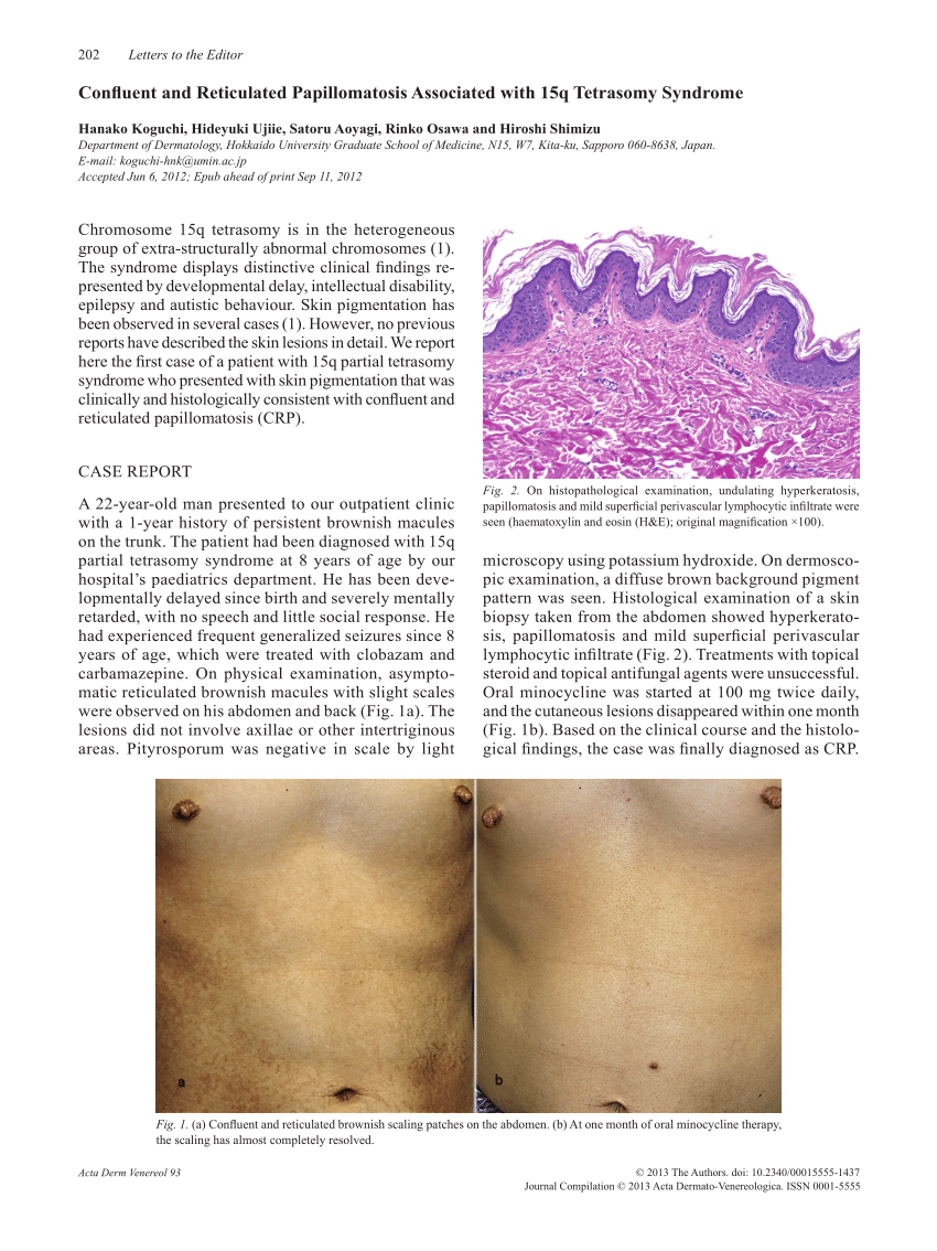 confluent and reticulated papillomatosis age of onset