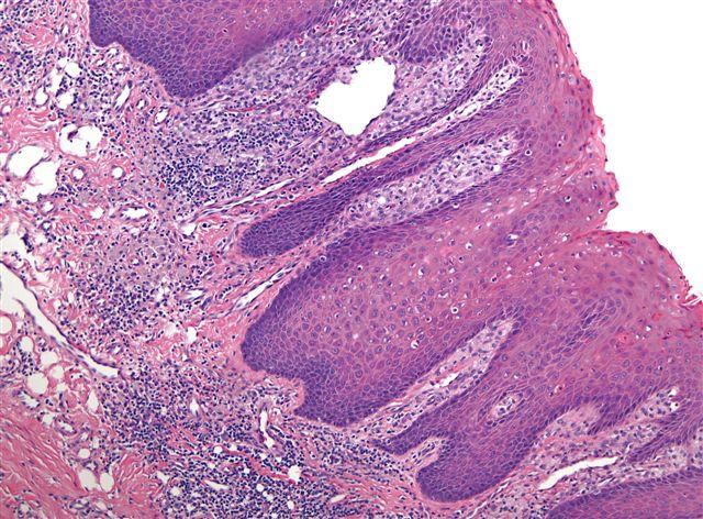 squamous papilloma tongue pathology outlines