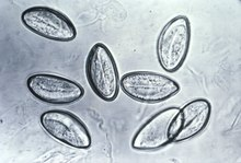 kindermadenwurm (enterobius vermicularis) hpv wart cyst
