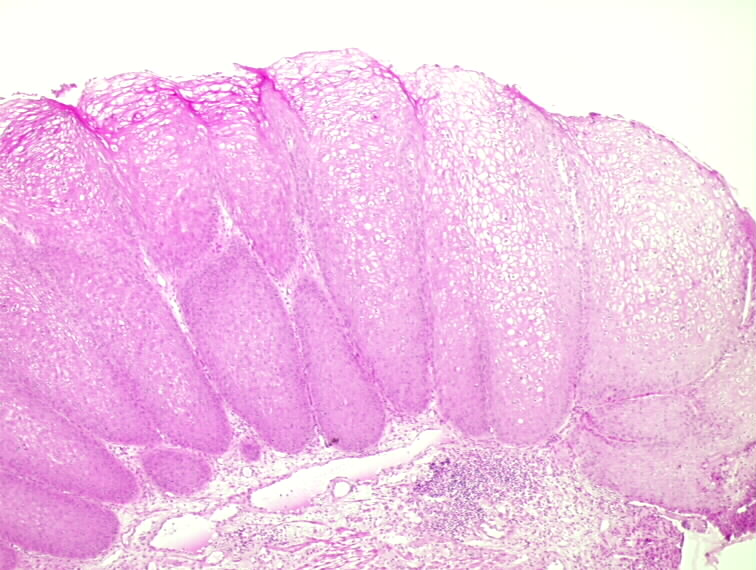 squamous papilloma scalp