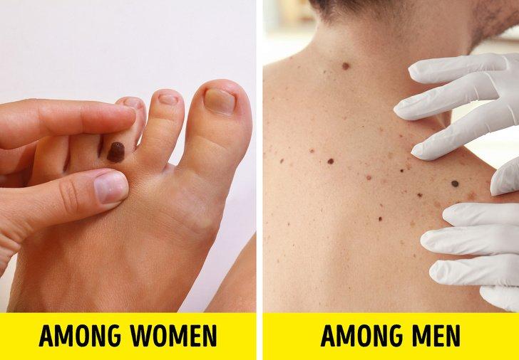 unde apare cancerul de piele papilloma vescicale