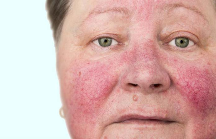 Tratarea microbiană a eczema varicoase