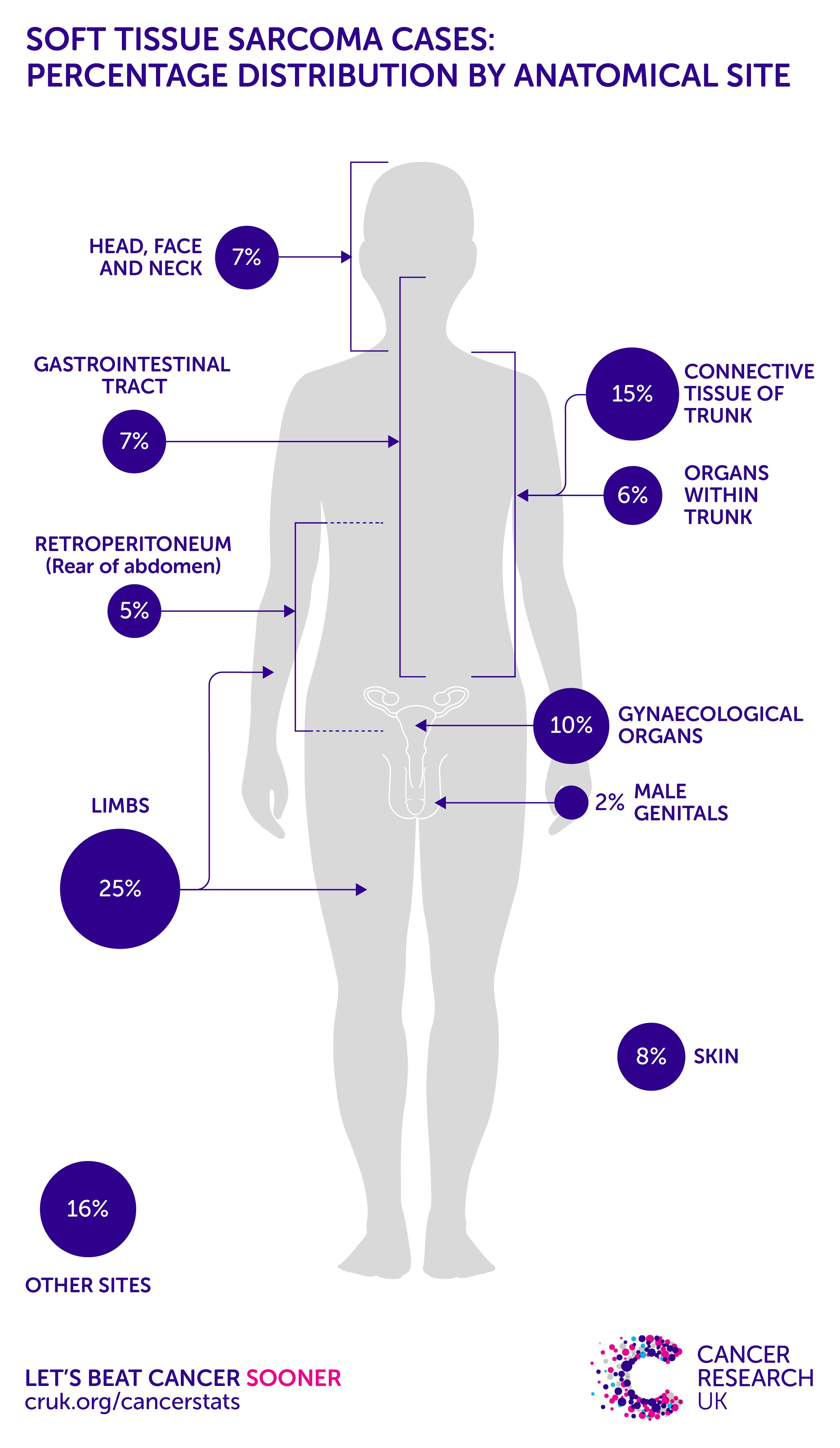 sarcoma cancer uk