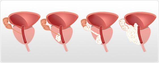 Imagistica prin Rezonanta Magnetica (IRM) in cancerul prostatic