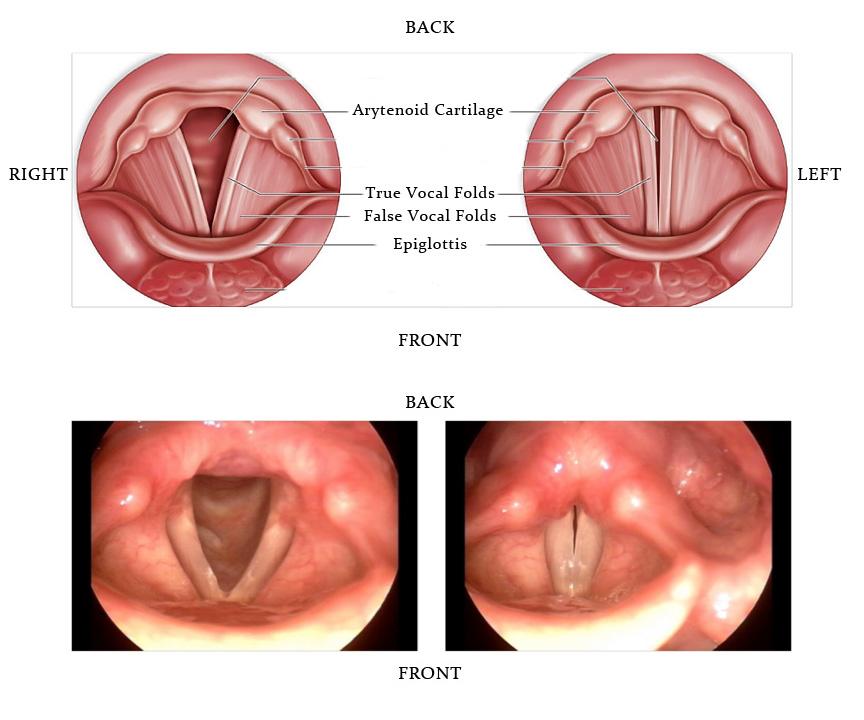 laryngeal papillomatosis newborn