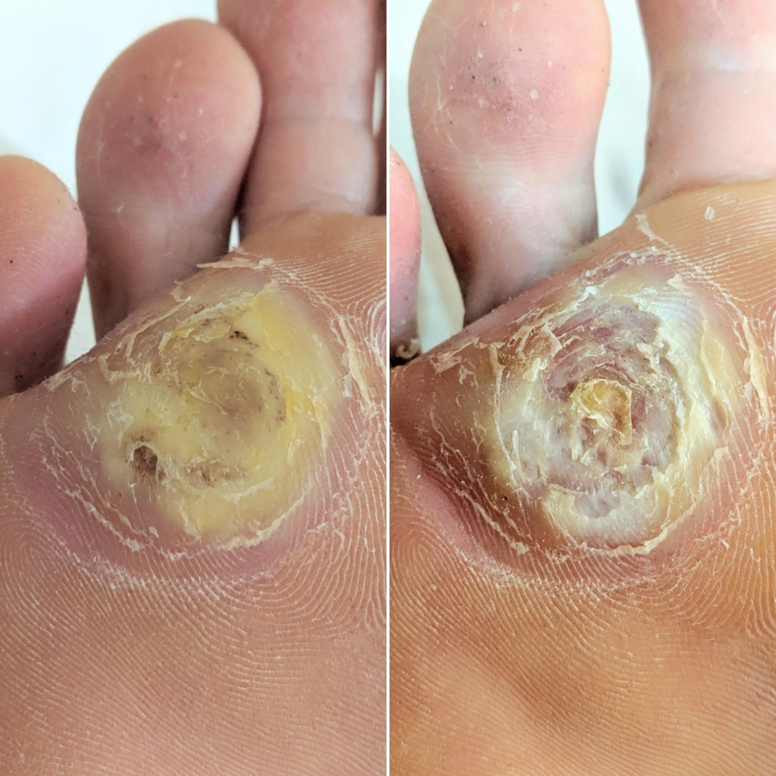 wart treatment with salicylic acid