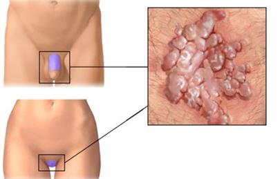 hpv tumor model