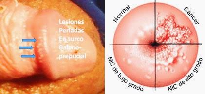 dermatite yogurt hpv cancer in tongue