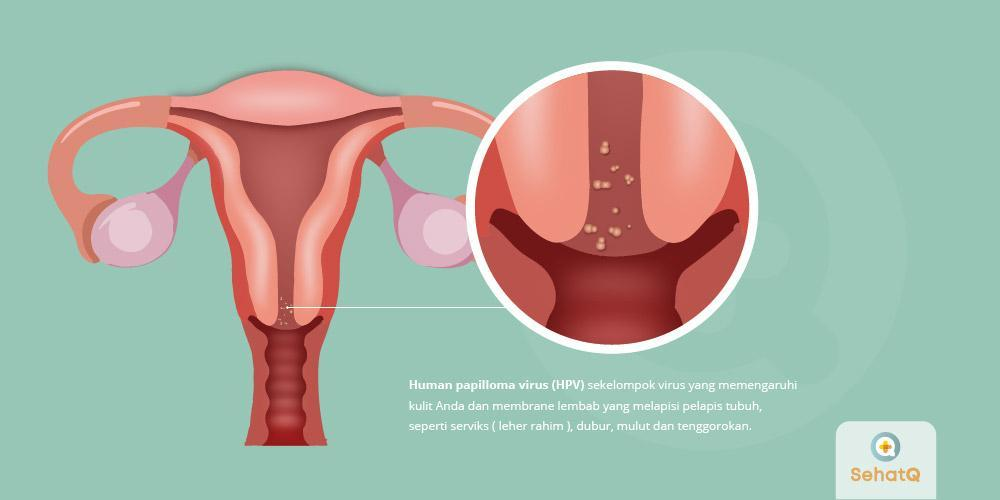 papiloma la femei human papillomavirus in 2019 an update on cervical cancer prevention and screening guidelines