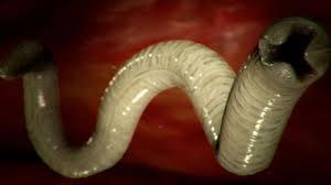 paraziti i gliste