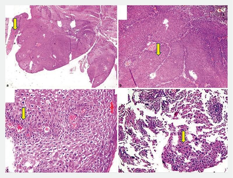 squamous papilloma colonoscopy sintomi del papilloma virus nelluomo