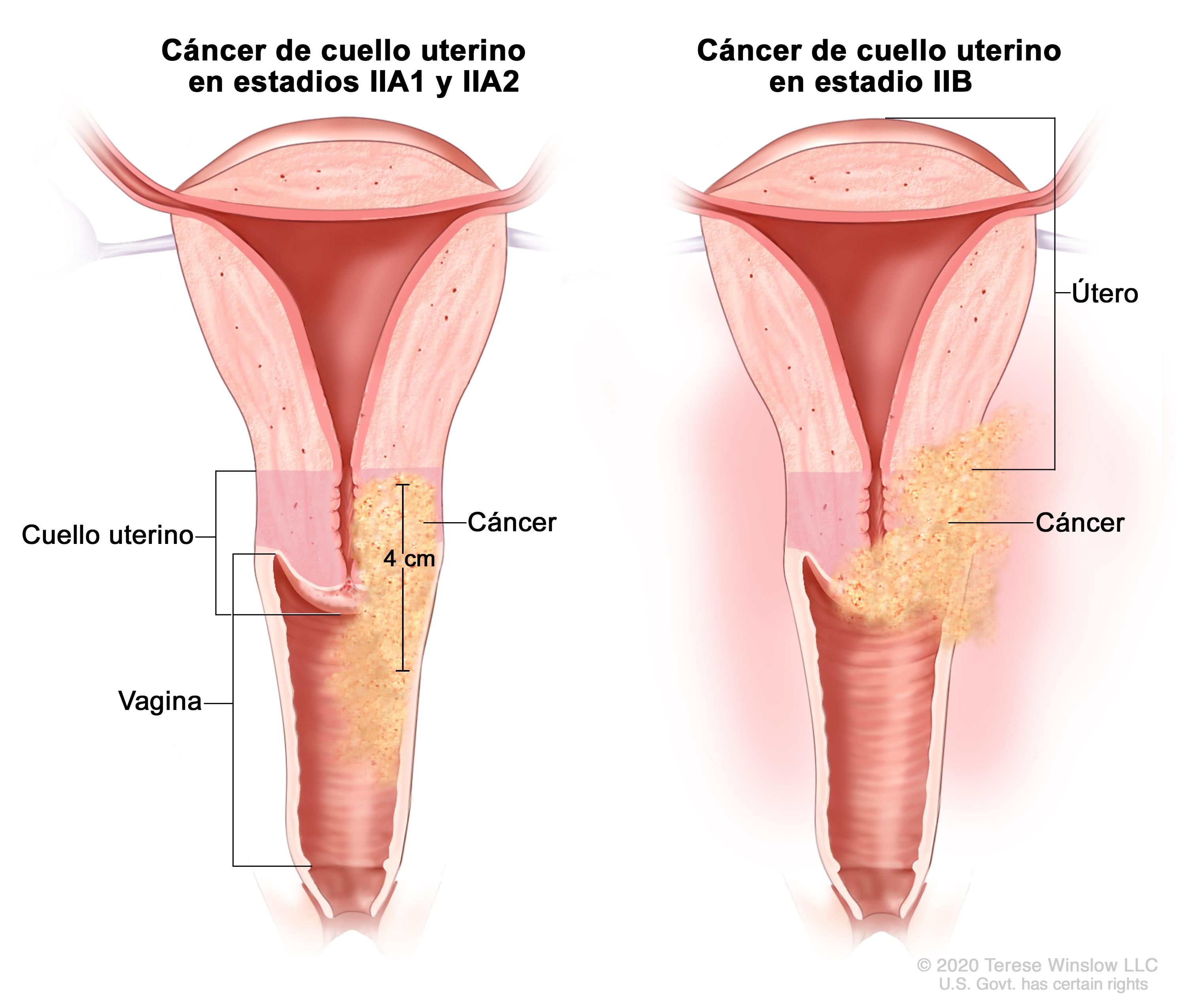 que es cancer al utero