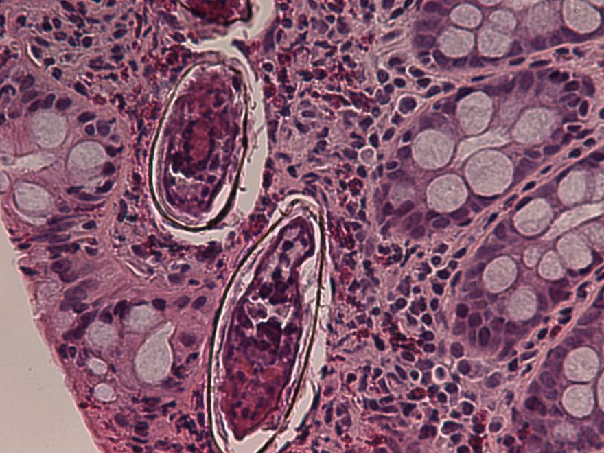 schistosomiasis pathology albendazol oxiuros