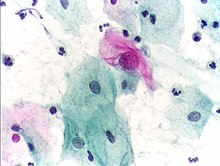 hpv virus and normal pap
