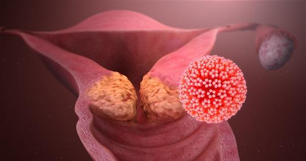 cancerul pulmonar cauze simptome tratament hpv vaccine pathology