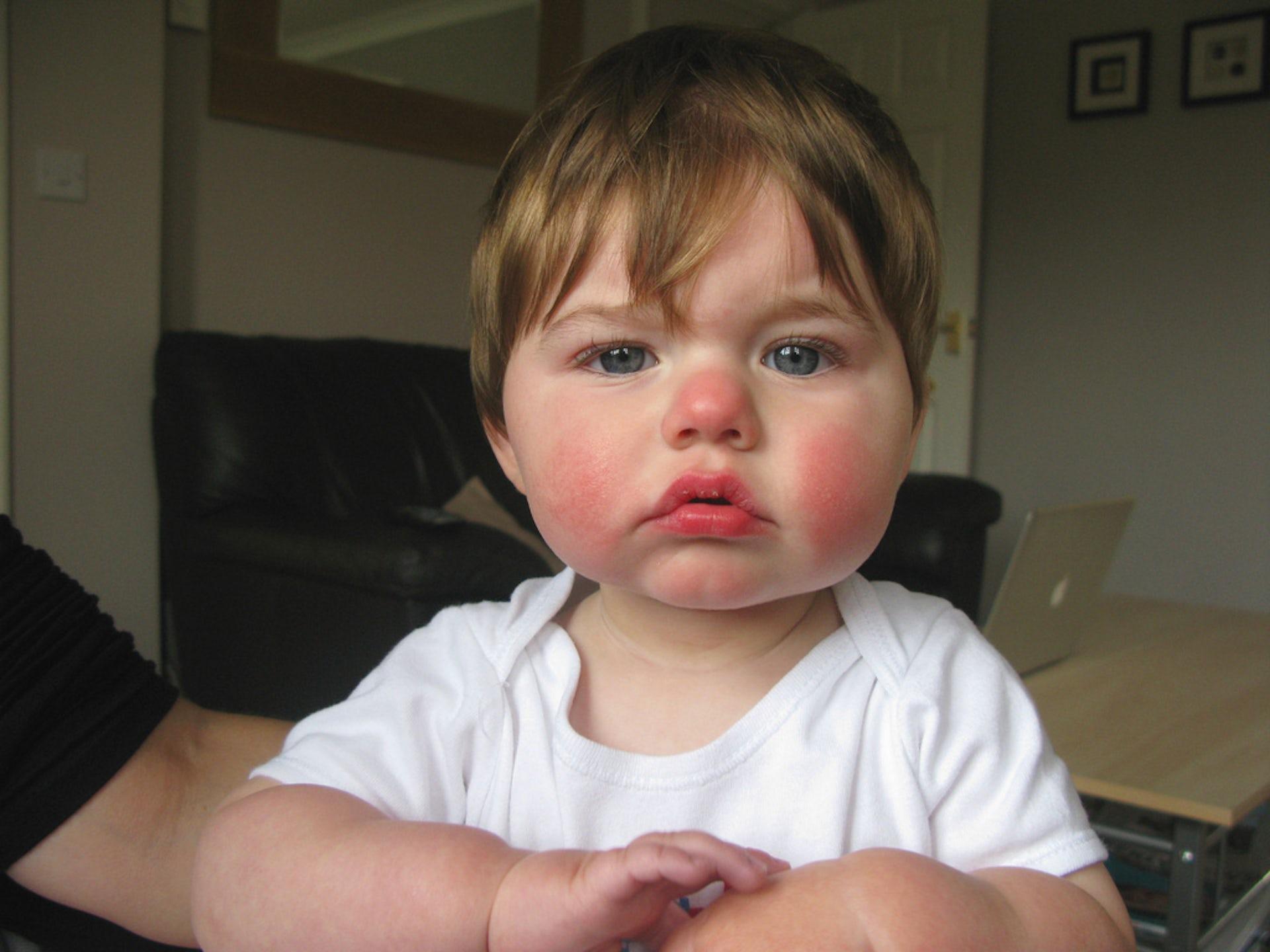 hpv skin rash on face hpv high risk infektion