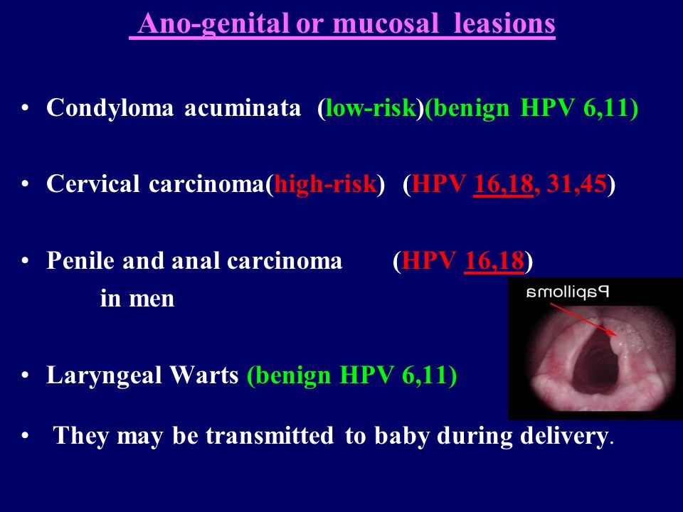 hpv high risk male
