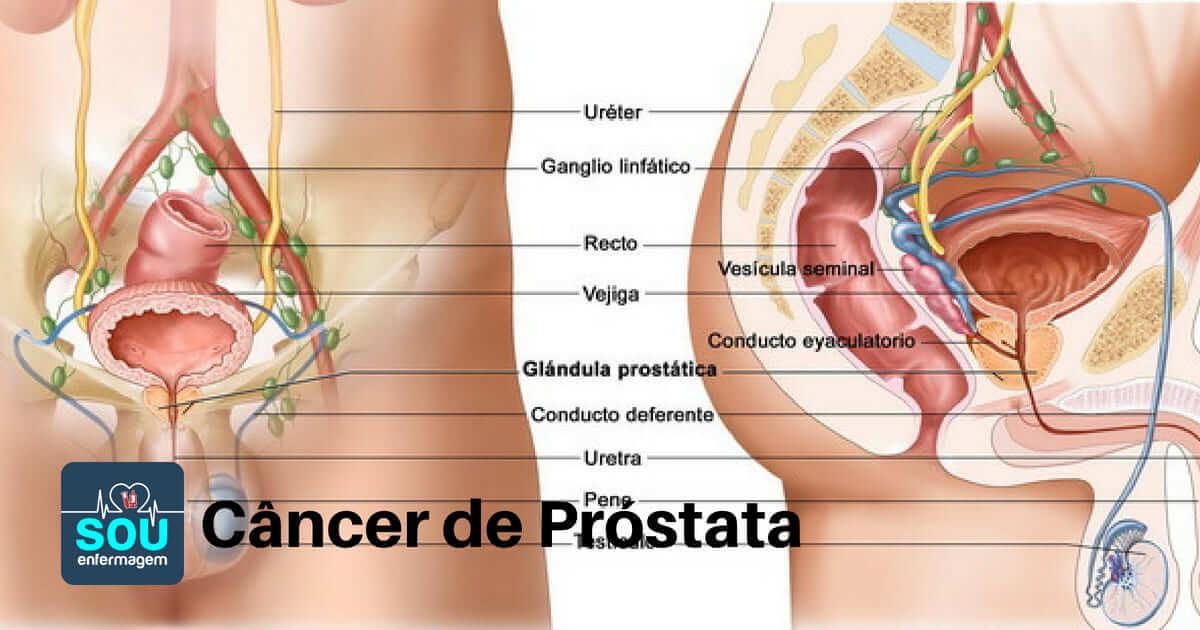 Tumora oncologica cancer de helmint