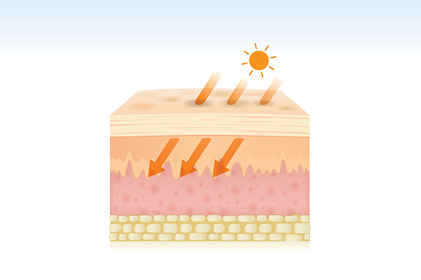 Cancerul de piele, preventie, simptome si tratament