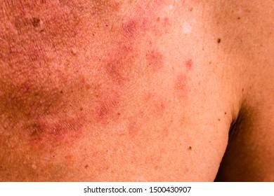 papilloma virus e herpes genitale