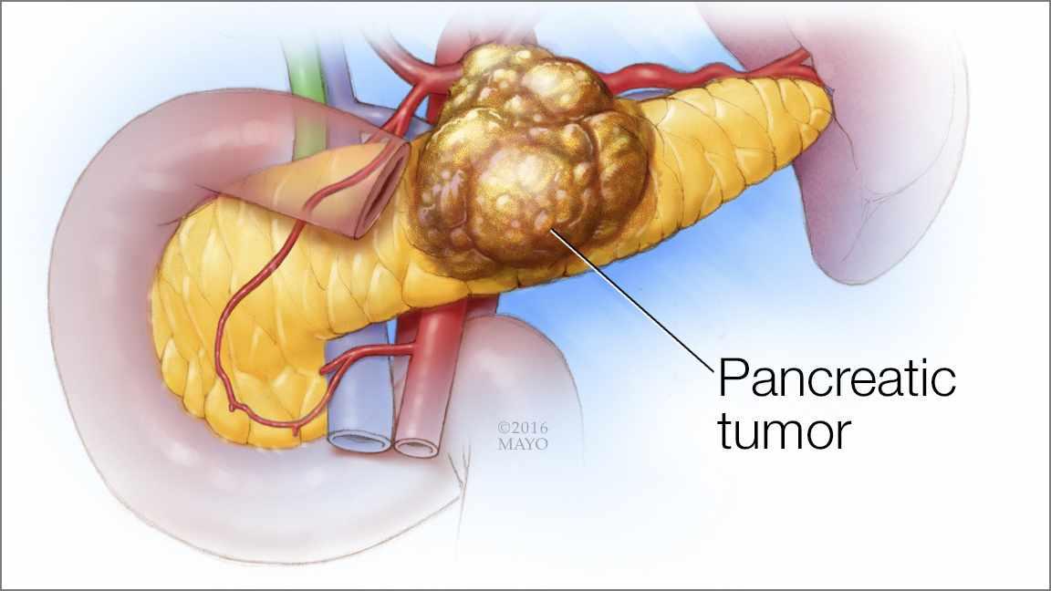 pancreatic cancer surgery papillomatosis breast mri