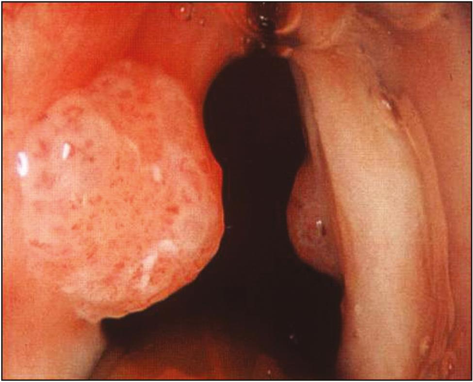 vaccinazione papilloma virus per i maschi remede naturel contre papillomavirus