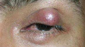 resultado positivo virus papiloma humano cancer de piele varsta