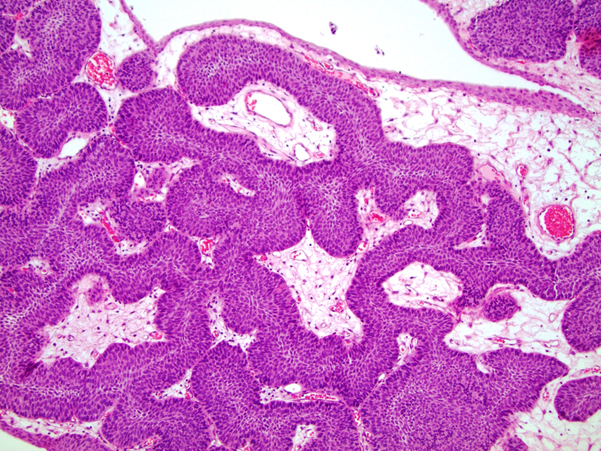 transitional papilloma bladder