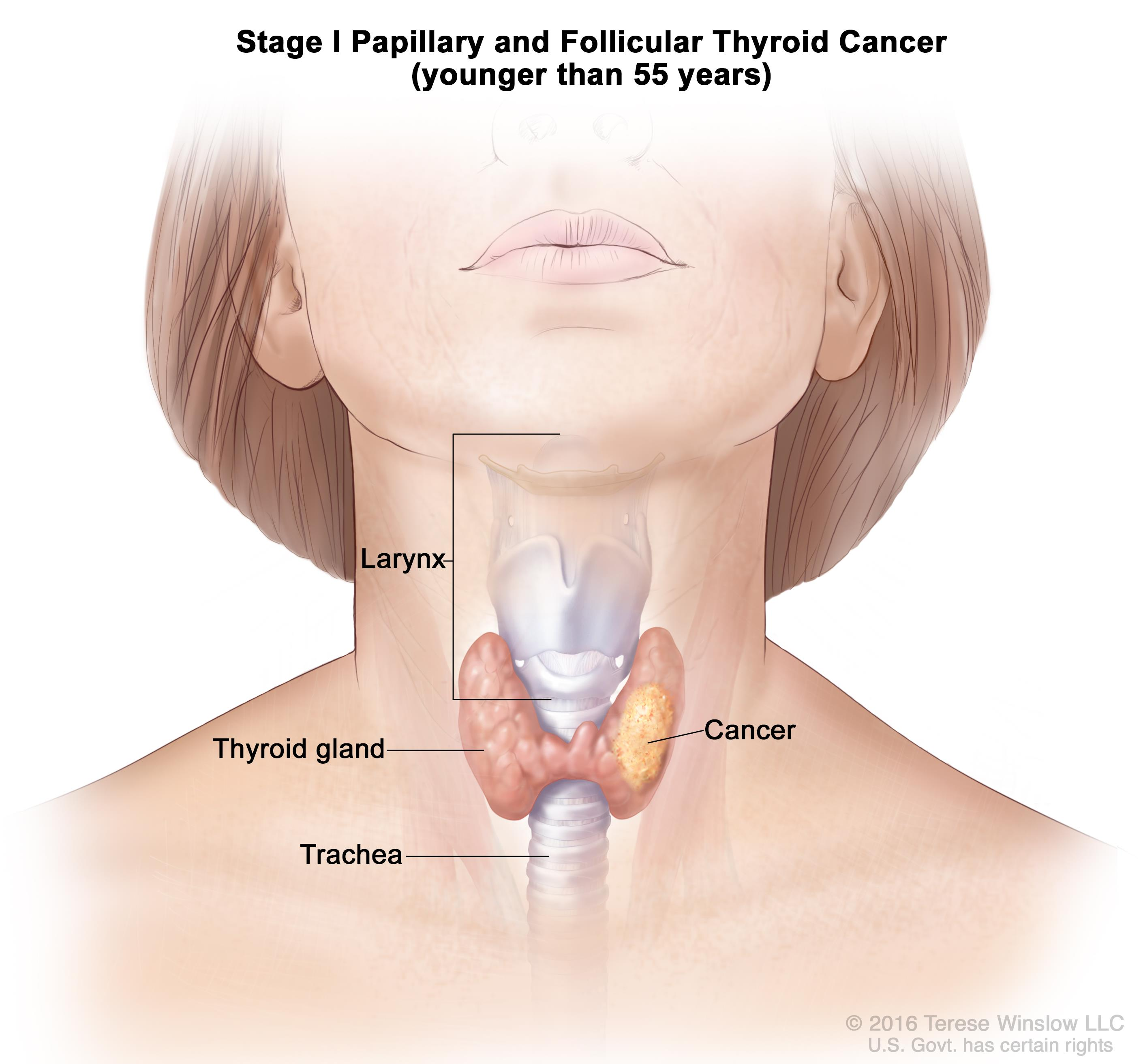 papillary thyroid cancer stage 1 treatment