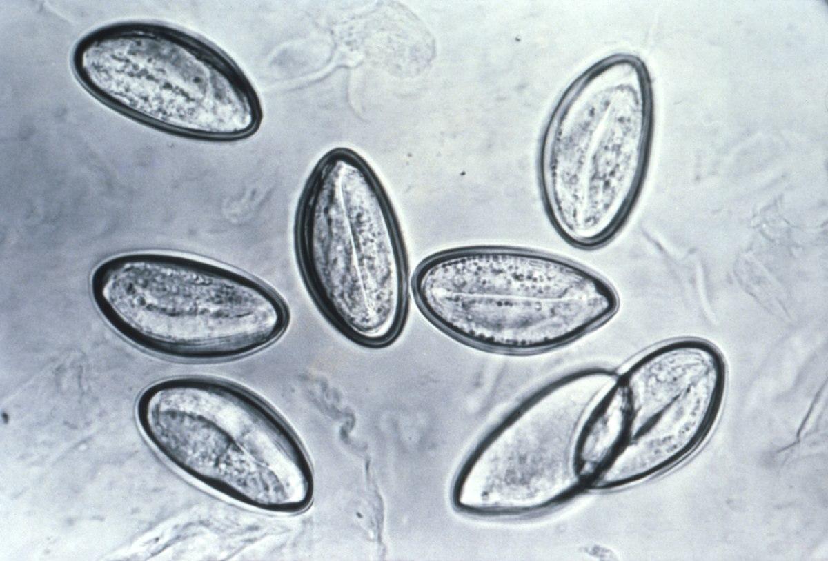 enterobius vermicularis filo