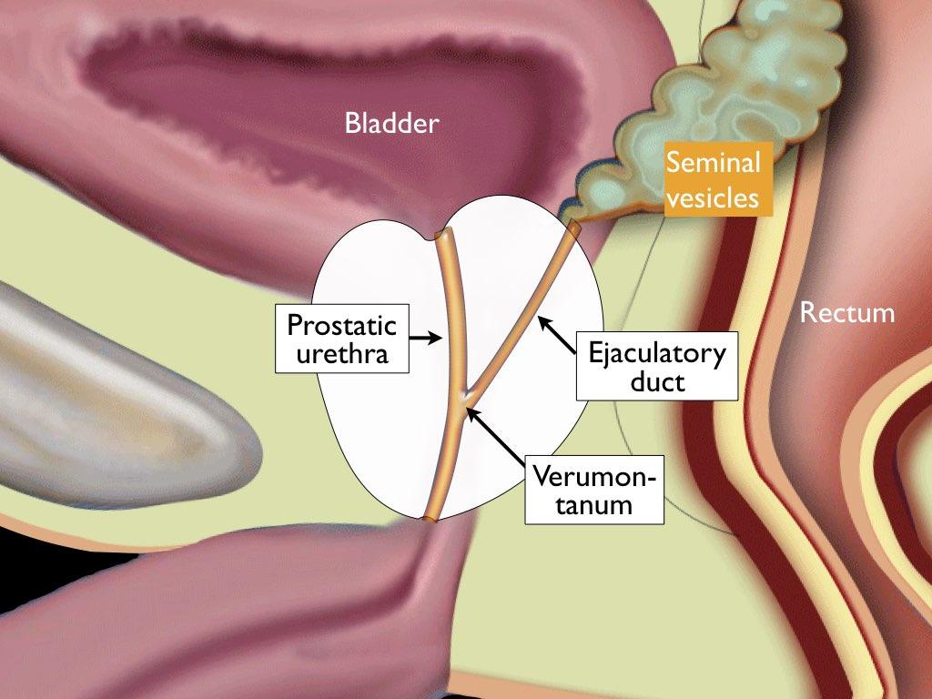 cancerul malign de prostata human papillomavirus transmission mode