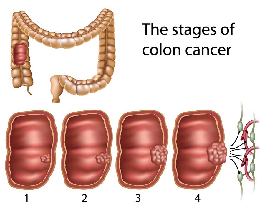 cancer of rectal polyps