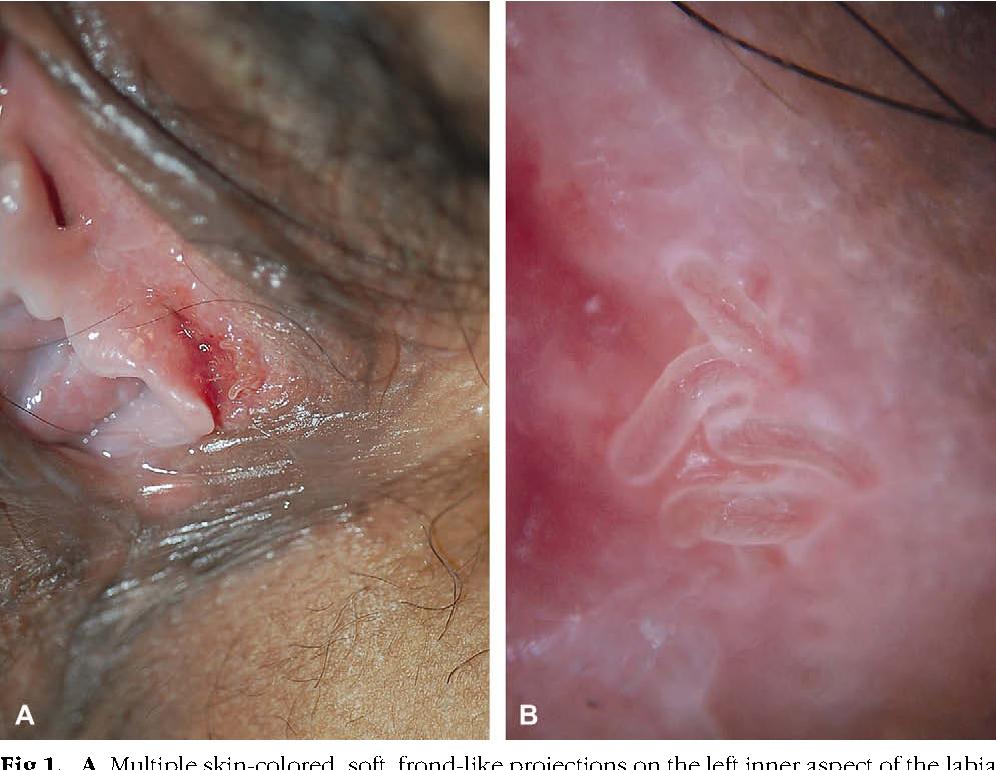 vestibular papillomatosis linear hpv virus warzen