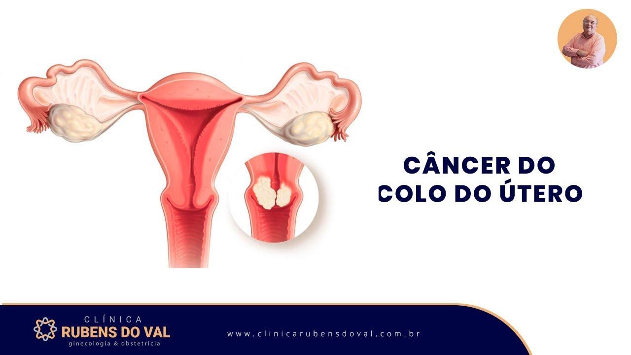 cancer de colo do utero sintomas del cancer de colon en hombres