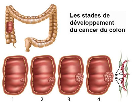 cancer colon vitesse sedimentation