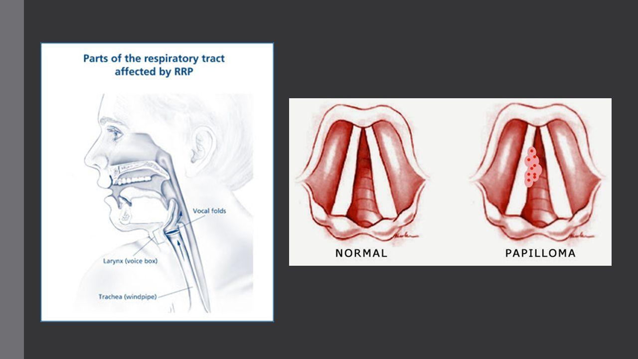 papilloma respiratory system parazitii goana dupa iluzii