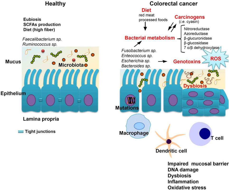 ovarian cancer metastatic prognosis hpv female genital warts