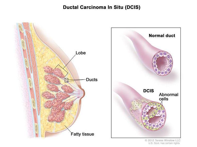 Atipice ductal Hiperplazia: Cancer de risc, DCIS si tratament