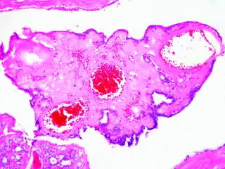 ciuperci negre papillomavirus transmission preservatif