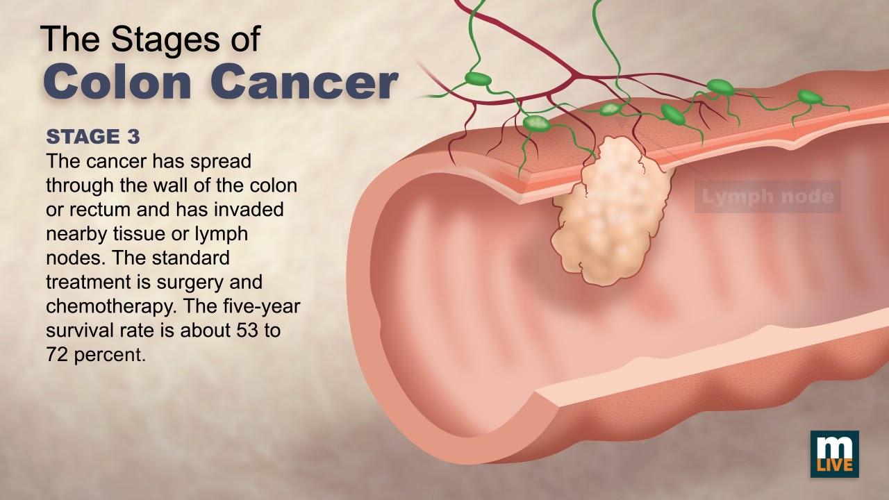 cancer colon intestinal cancer peritoneal lining
