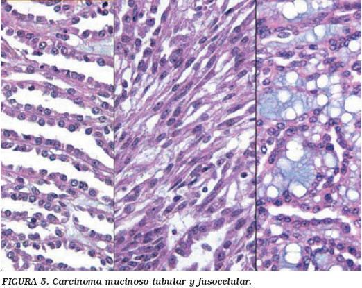 cancer renal cromofobo hpv virus drager