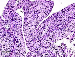 papillary urothelial carcinoma renal pelvis