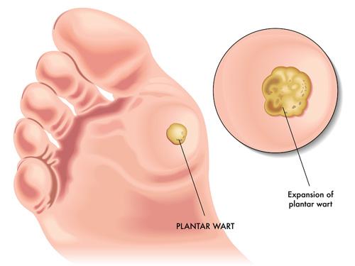 foot wart diagram cancer laringe causas