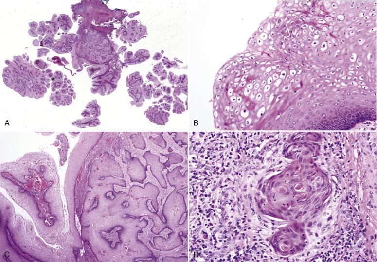 Morphopathology Macroscopy (Romanian-Batch)