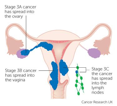 intestinal cancer feline papiloma human en hombres