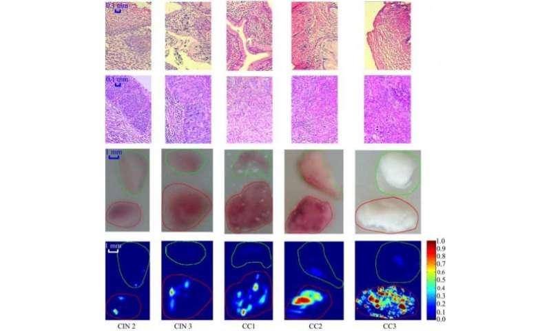 cervical cancer of detection