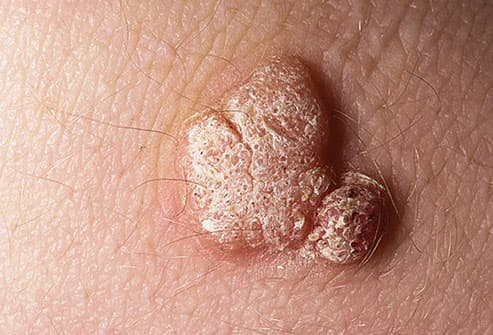 hpv virus and warts
