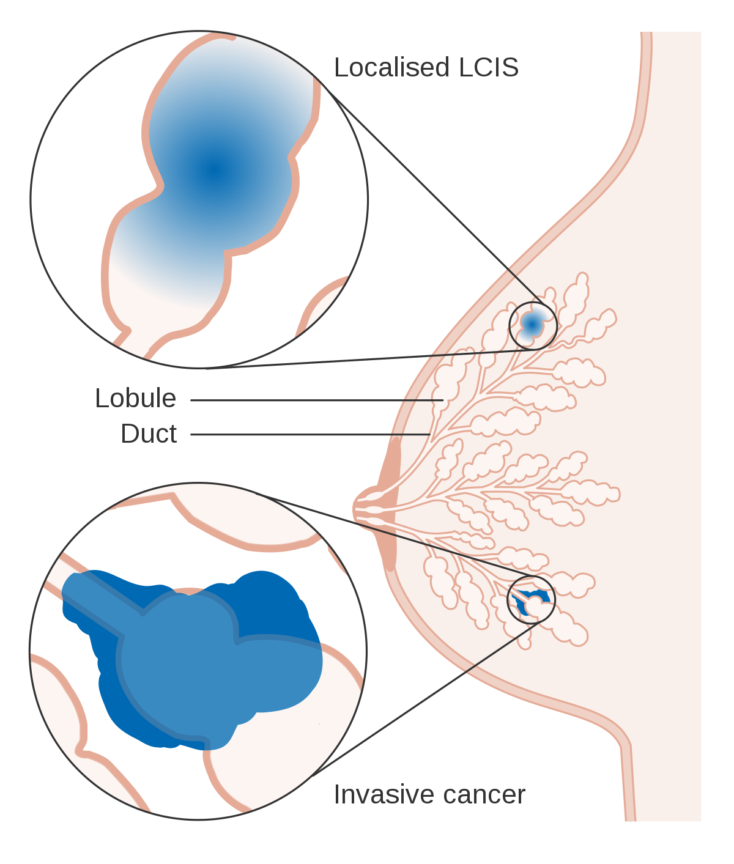Cancerul căilor biliare: Ghidul ESMO de practică clinică pentru diagnostic, tratament şi urmărire