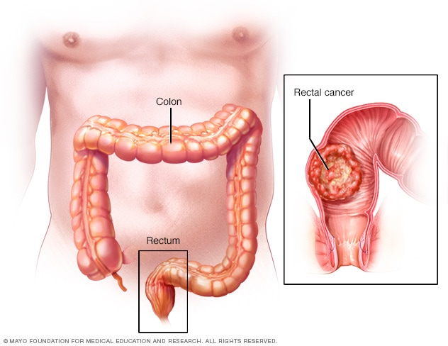 rectal cancer what is it